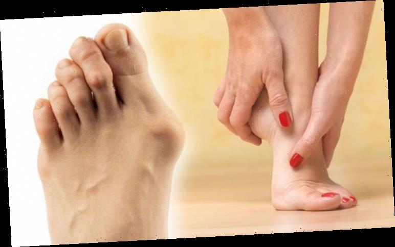 Bunion treatment: How to treat the 'lumps' on your feet – signs of something more serious