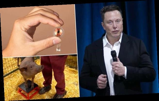 Elon Musk's Nueralink and other brain chips come with ethical issues