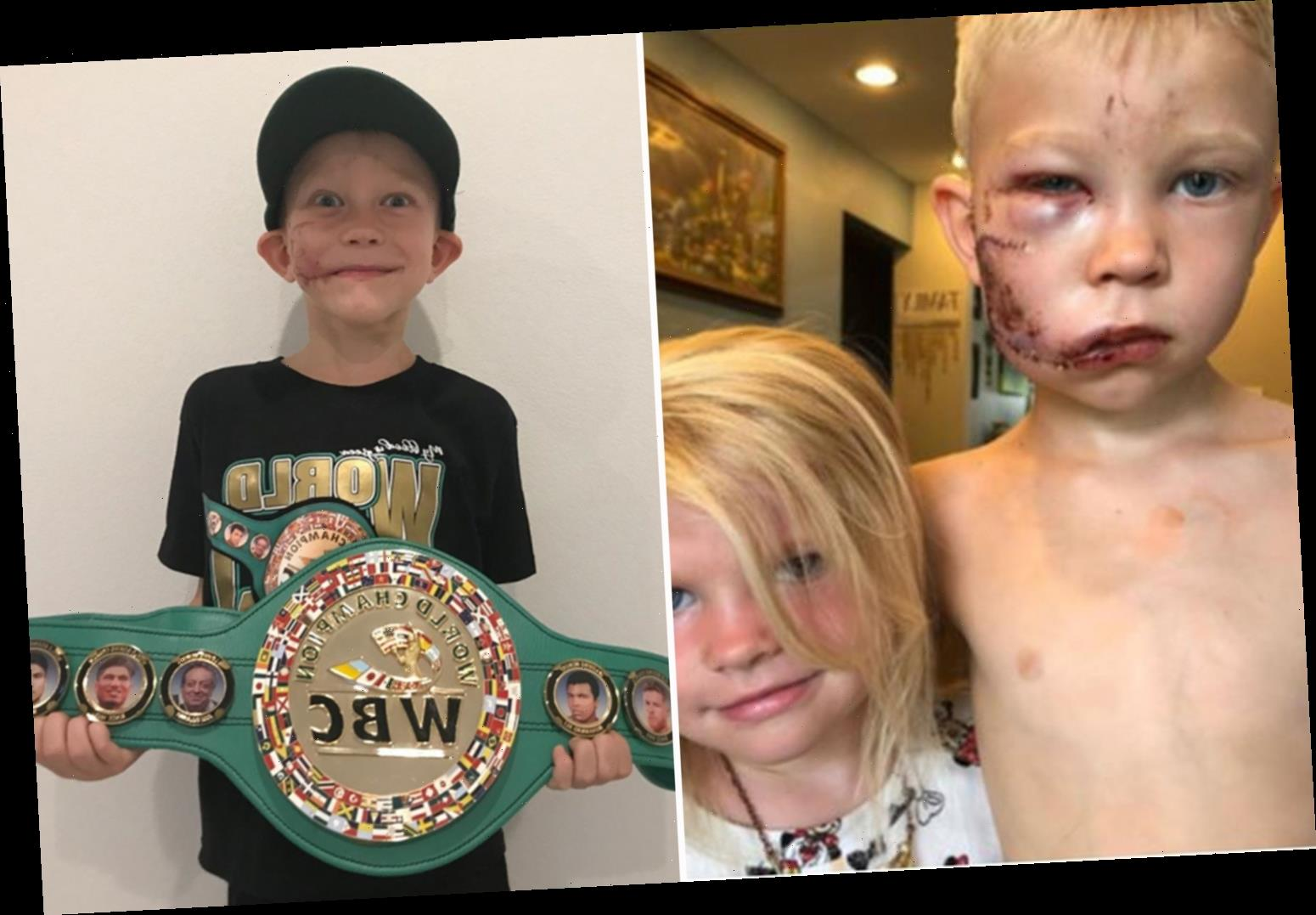 WBC announces new 'Bridger' weight class named in honour of child who was savaged in dog attack