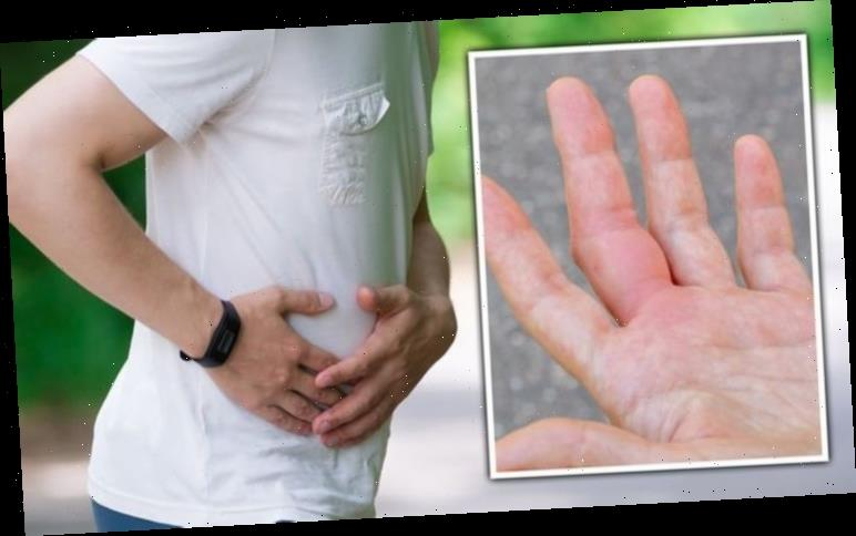 Fatty liver disease symptoms: Red palms could be sign of 'aggressive' form of condition