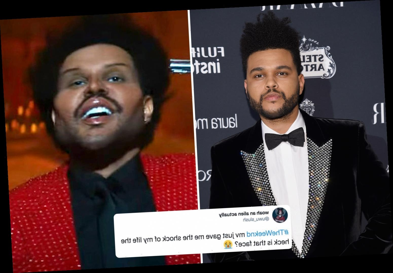 The Weeknd leaves fans 'scared' after debuting freaky face from 'plastic surgery' in new music video