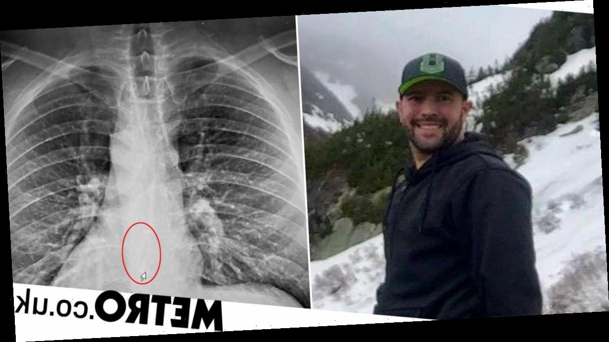 Man swallowed Airpods in his sleep but didn't know until he saw X-ray