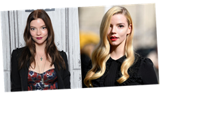 What Is Anya Taylor-Joy's Natural Hair Color? Hint: It's Not Red Like Beth Harmon's