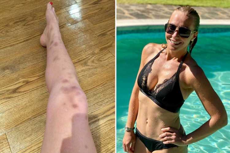A Place in the Sun's Laura Hamilton lifts lid on battle with autoimmune disease that leaves her covered in sore bruises