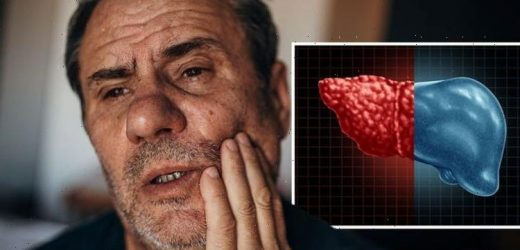 Fatty liver disease: 'Dry mouth' and 29 other possible symptoms of fatty liver disease