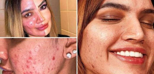 Bullies called me 'ugly' and 'pizza face' because of my acne – but you don't need perfect skin to be beautiful