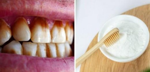 How to get rid of brown stains on your teeth – using baking soda
