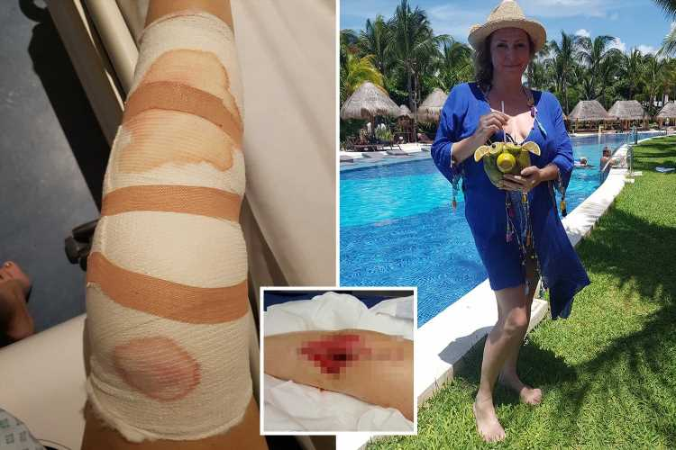 I felt a pop and sudden release as my leg 'EXPLODED' oozing pus and blood after freak accident