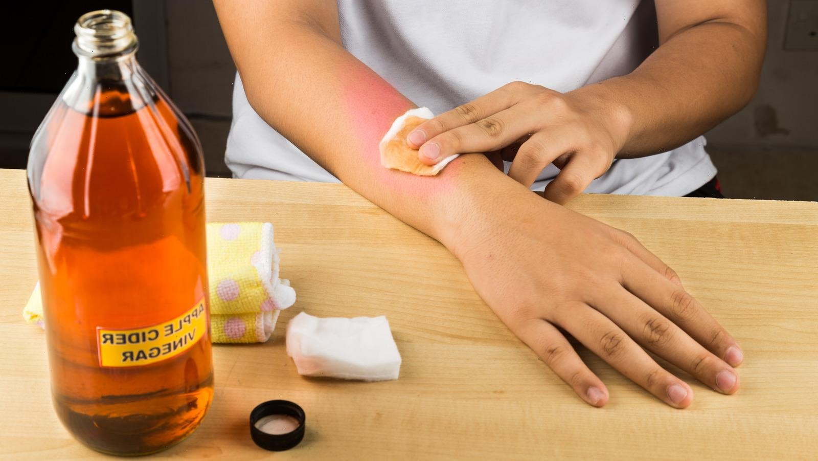 Can You Really Use Vinegar To Treat A Sunburn?