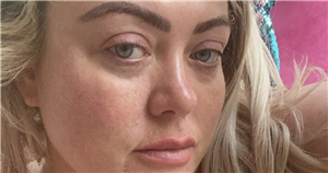 Gemma Collins details 'awful' food poisoning ordeal after she collapsed on floor