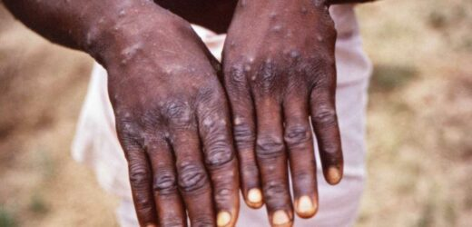 Monkeypox: Inside dreaded outbreaks as virus first found in brain test lab monkeys leaves humans covered in blisters