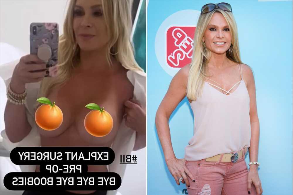 Former RHOC star Tamra Judge having breast implants removed