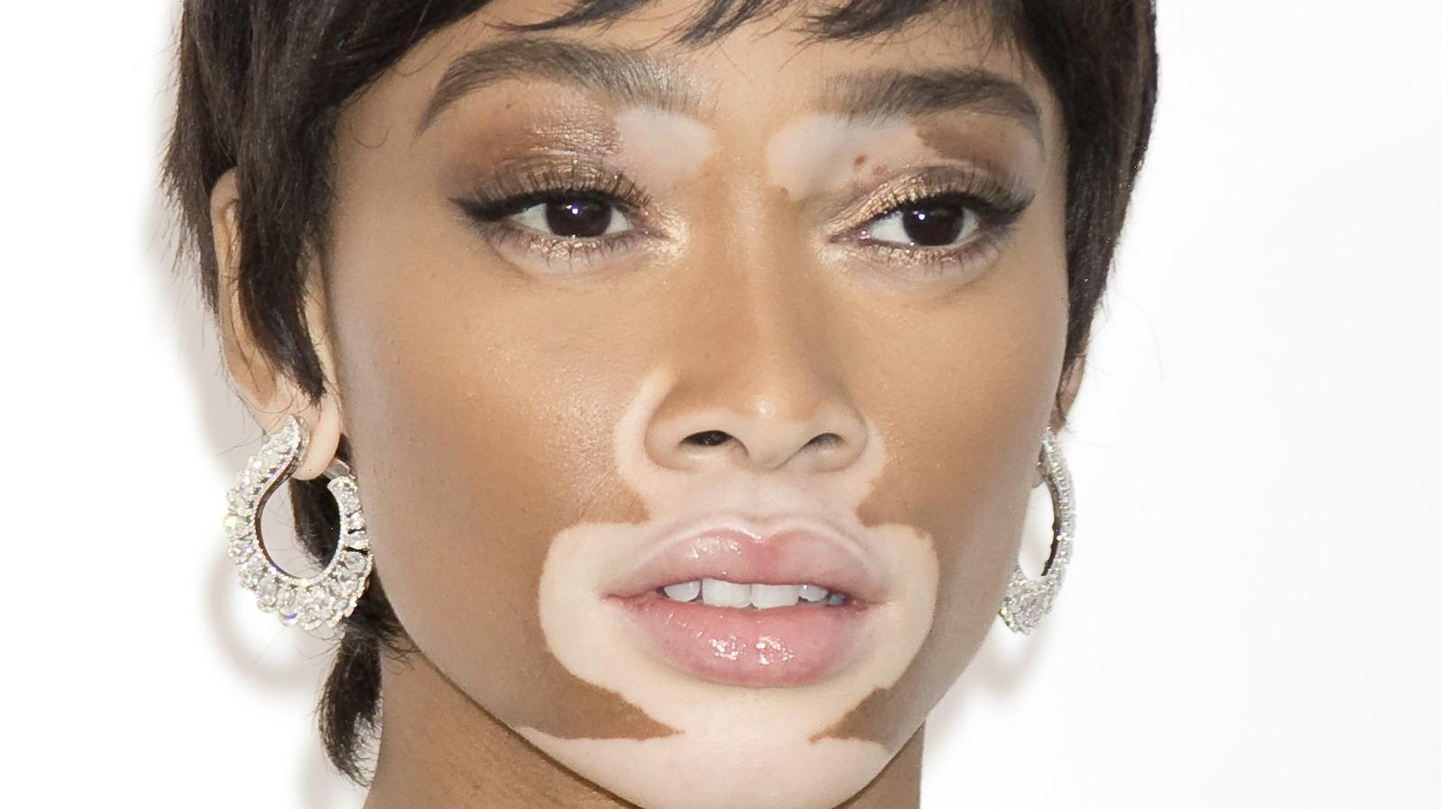 How To Replicate Winnie Harlow's Makeup Routine