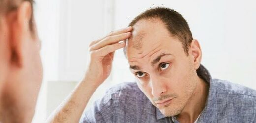 Men with hair loss should be offered therapy to cope with the trauma