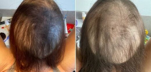 Woman who lost hair due to Covid stress shares before-and-after snaps