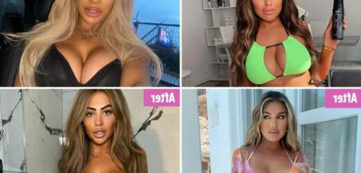 Anna Vakili and Chloe Ferry lead the stars REVERSING their mega boob jobs as 'itty bitties' become the latest must-have