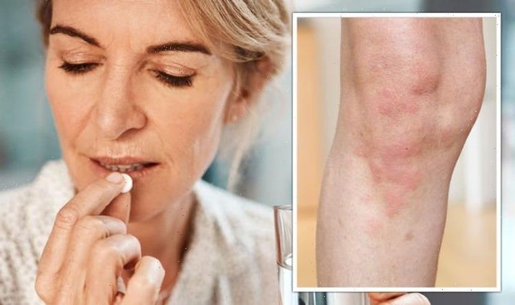 COVID-19: Penicillin allergy could worsen your infection – the main symptoms to look for