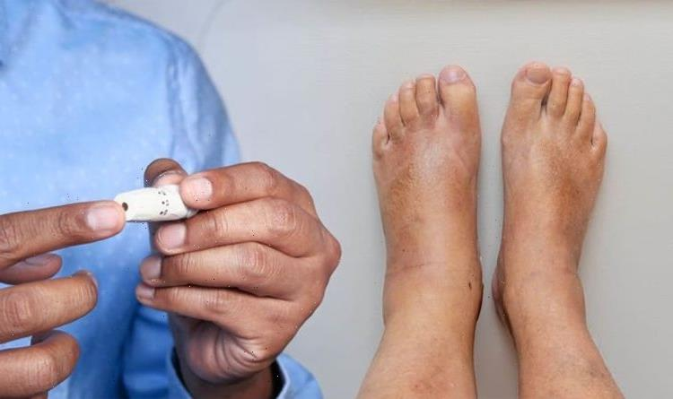 Diabetes signs in your feet – the 14 symptoms to watch out for
