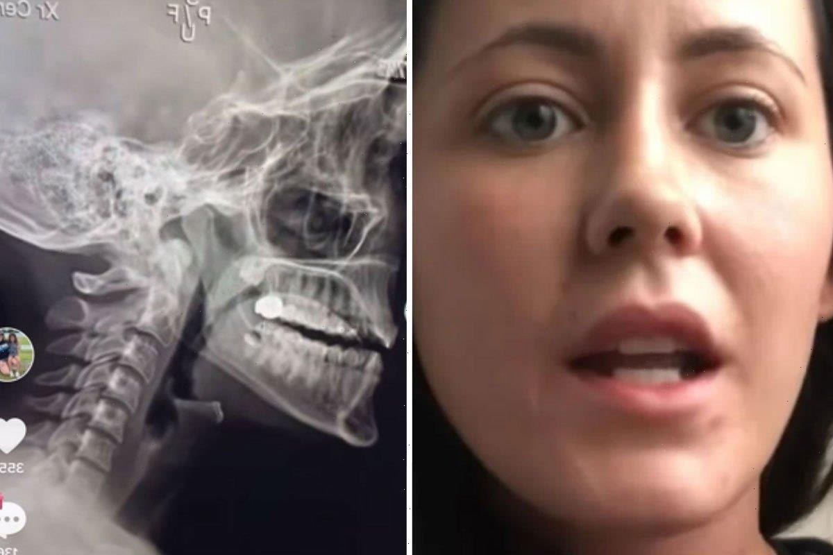Teen Mom Jenelle Evans slammed for insisting she's not missing her bottom teeth as fans uncover old photos