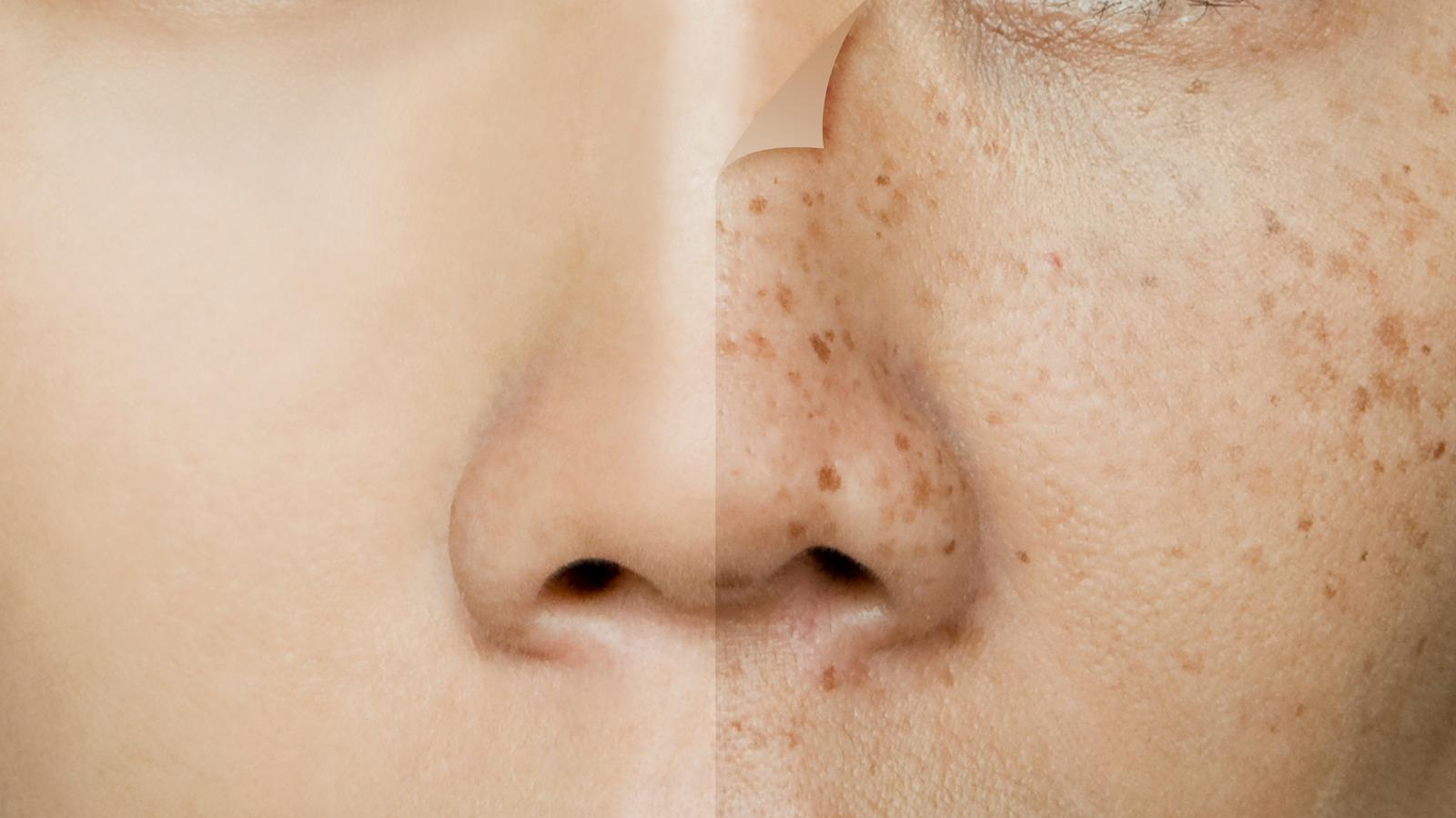Are People Born With Freckles?
