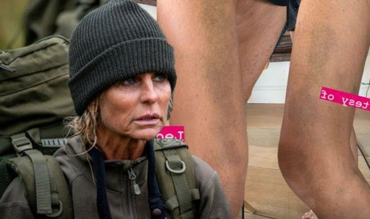 Ulrika Jonsson shares painful-looking snaps of heavily bruised body as she explains cause