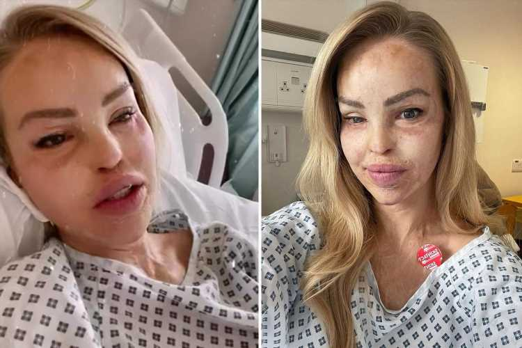 Katie Piper rushed to hospital after choking on her food for emergency procedure to save her life